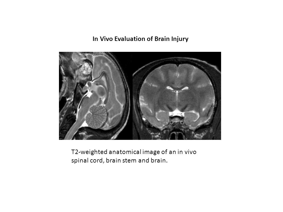 In Vivo Evaluation of Brain Injury