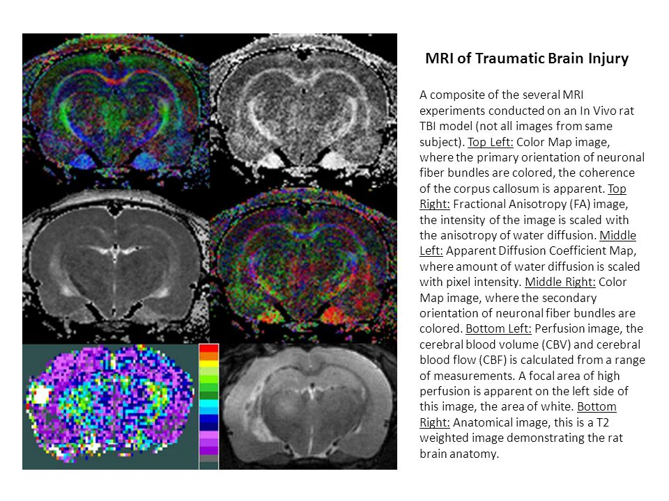 MRI of Traumatic Brain Injury