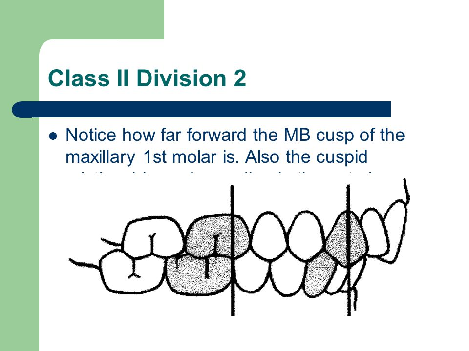 Class II Division 2 Notice how far forward the MB cusp of the maxillary 1st molar is.