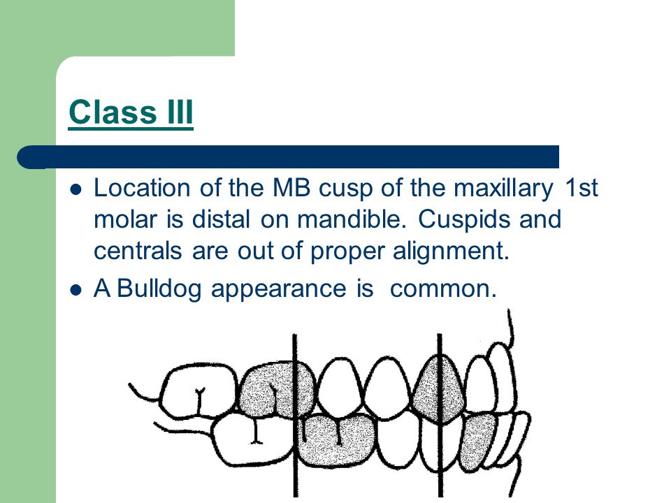 Class III Location of the MB cusp of the maxillary 1st molar is distal on mandible. Cuspids and centrals are out of proper alignment.