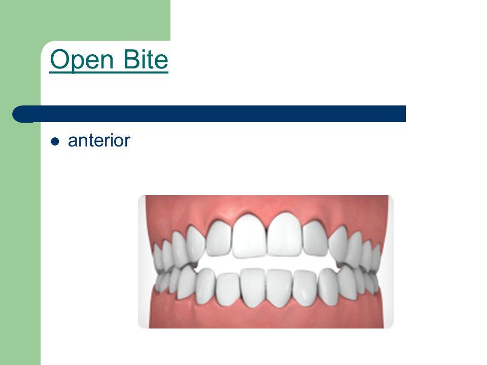 Open Bite anterior