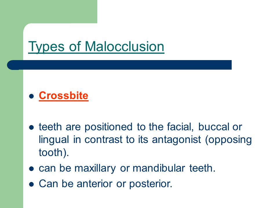 Types of Malocclusion Crossbite