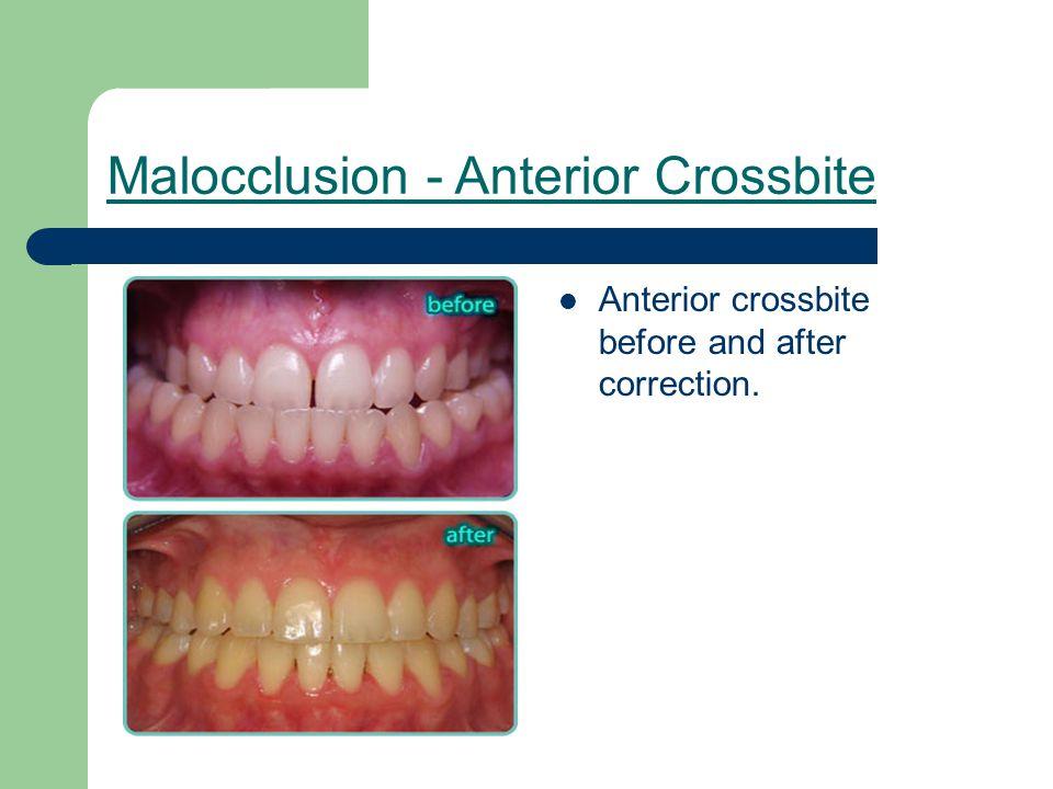 Malocclusion - Anterior Crossbite