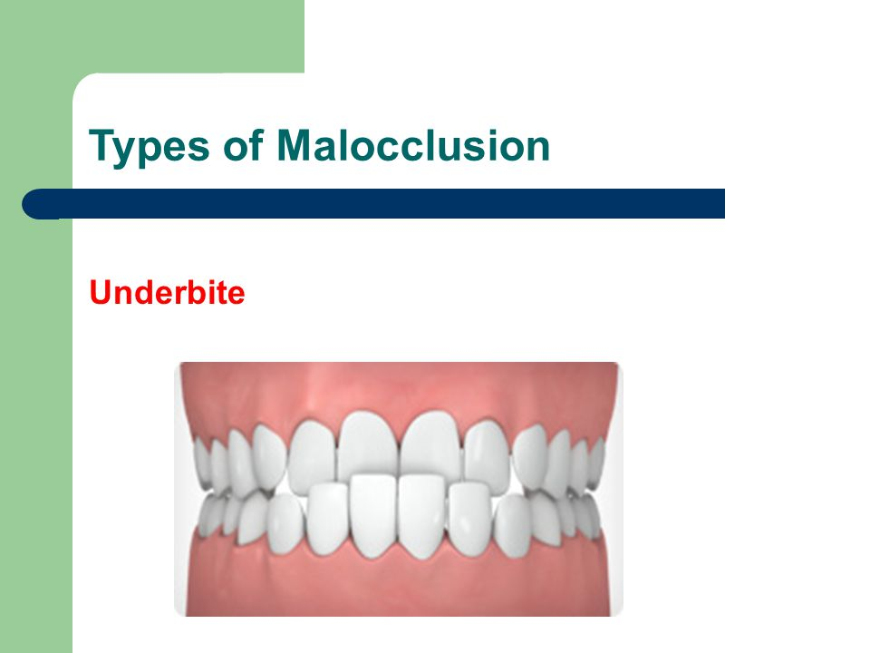 Types of Malocclusion Underbite