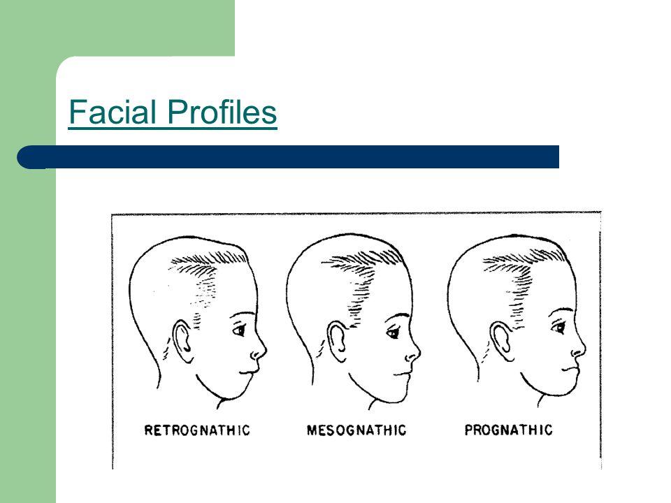 Facial Profiles