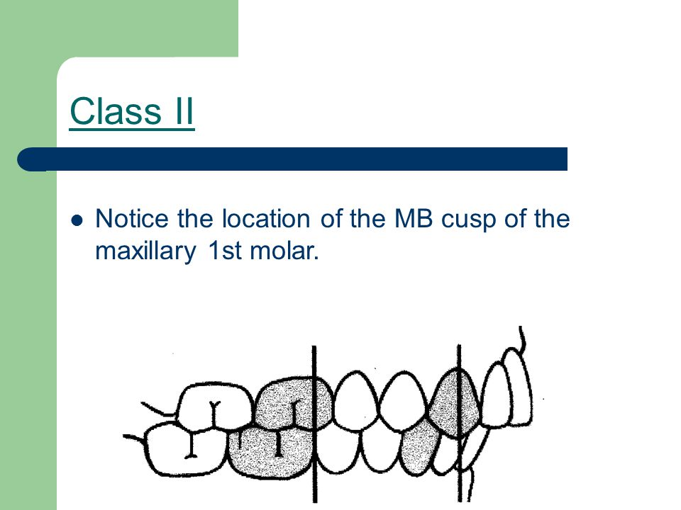 Class II Notice the location of the MB cusp of the maxillary 1st molar.
