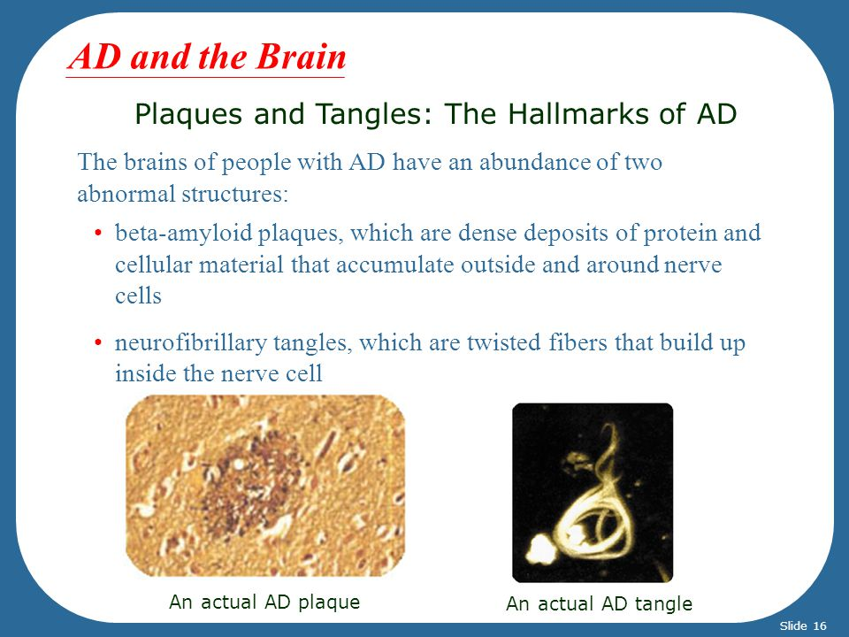 Plaques and Tangles: The Hallmarks of AD