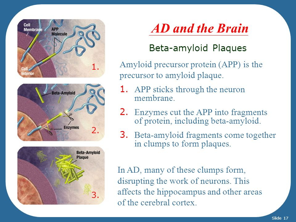 AD and the Brain Beta-amyloid Plaques