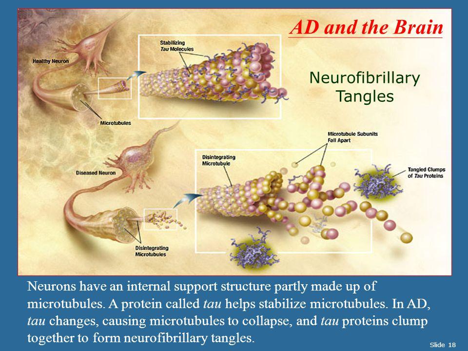 Neurofibrillary Tangles