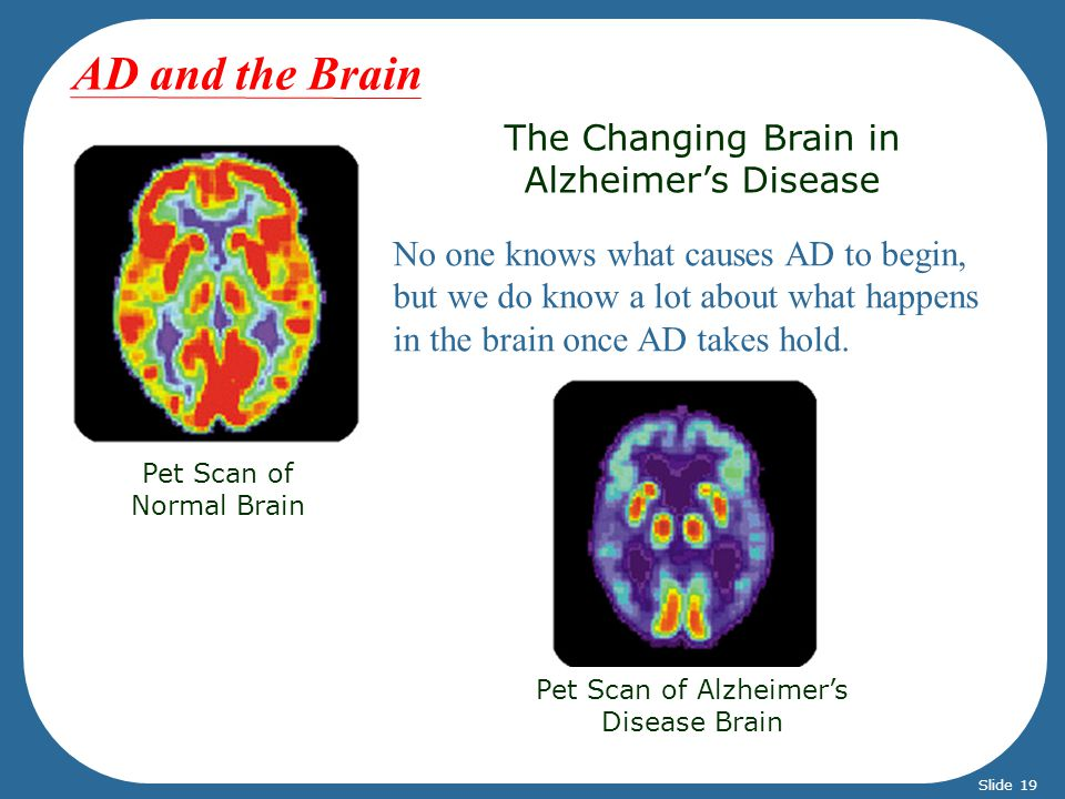 AD and the Brain The Changing Brain in Alzheimer's Disease
