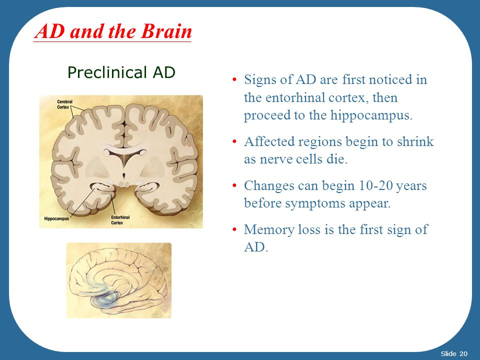 AD and the Brain Preclinical AD