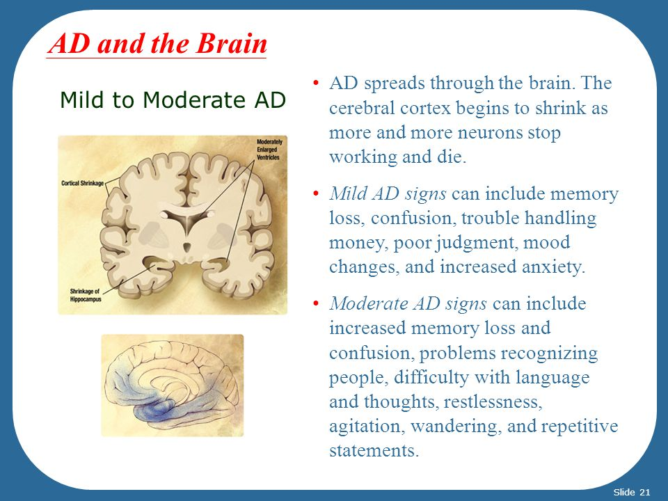 AD and the Brain Mild to Moderate AD