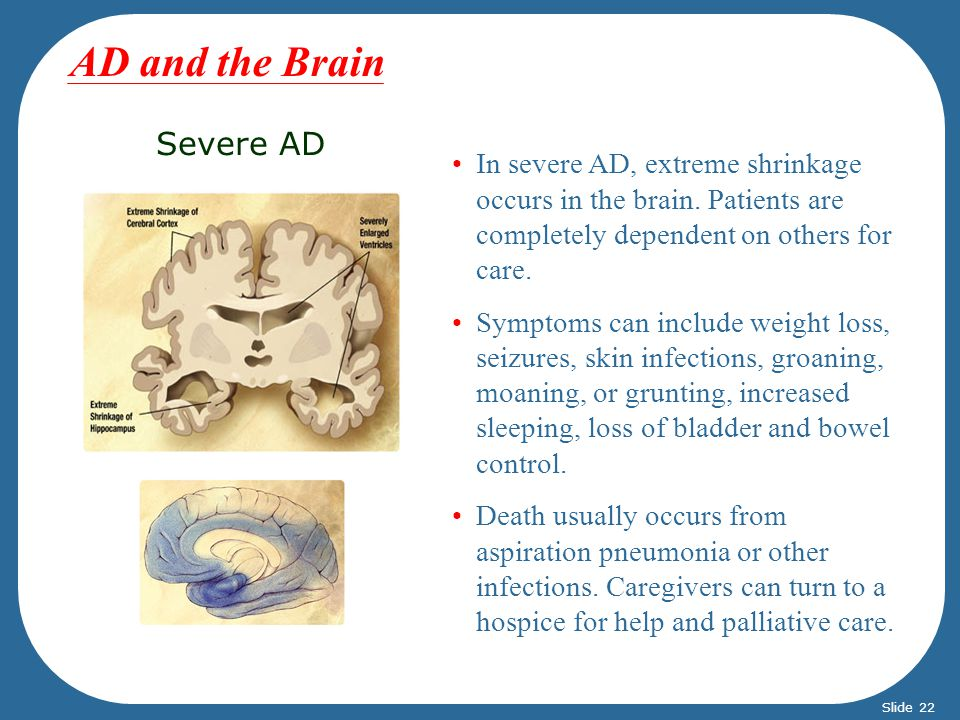 AD and the Brain Severe AD