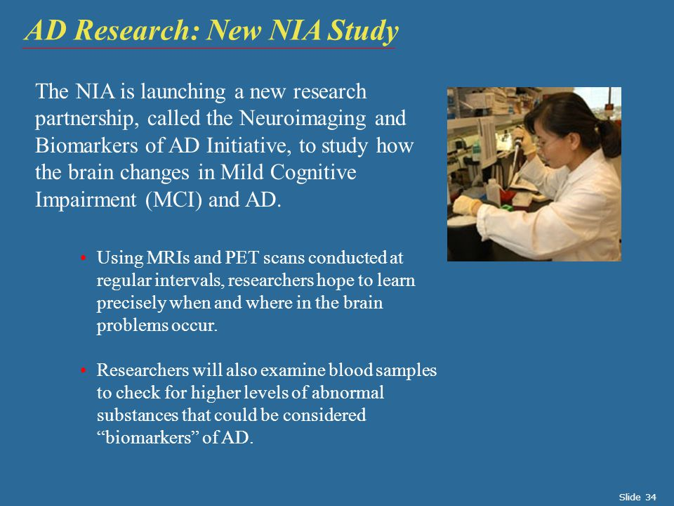 AD Research: New NIA Study