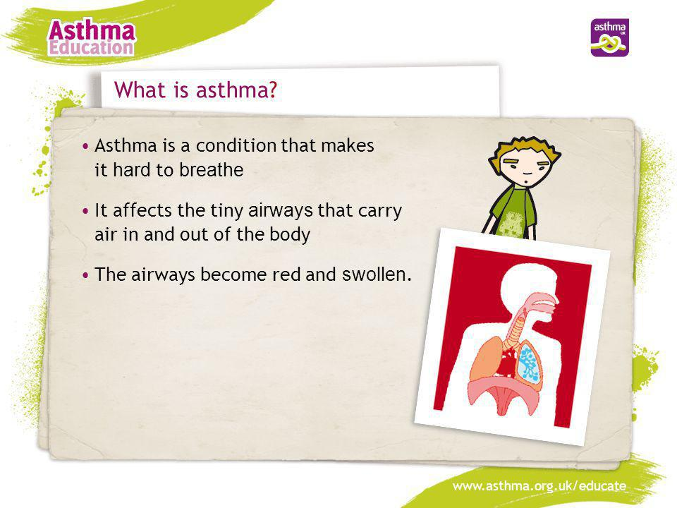 What is asthma • Asthma is a condition that makes it hard to breathe