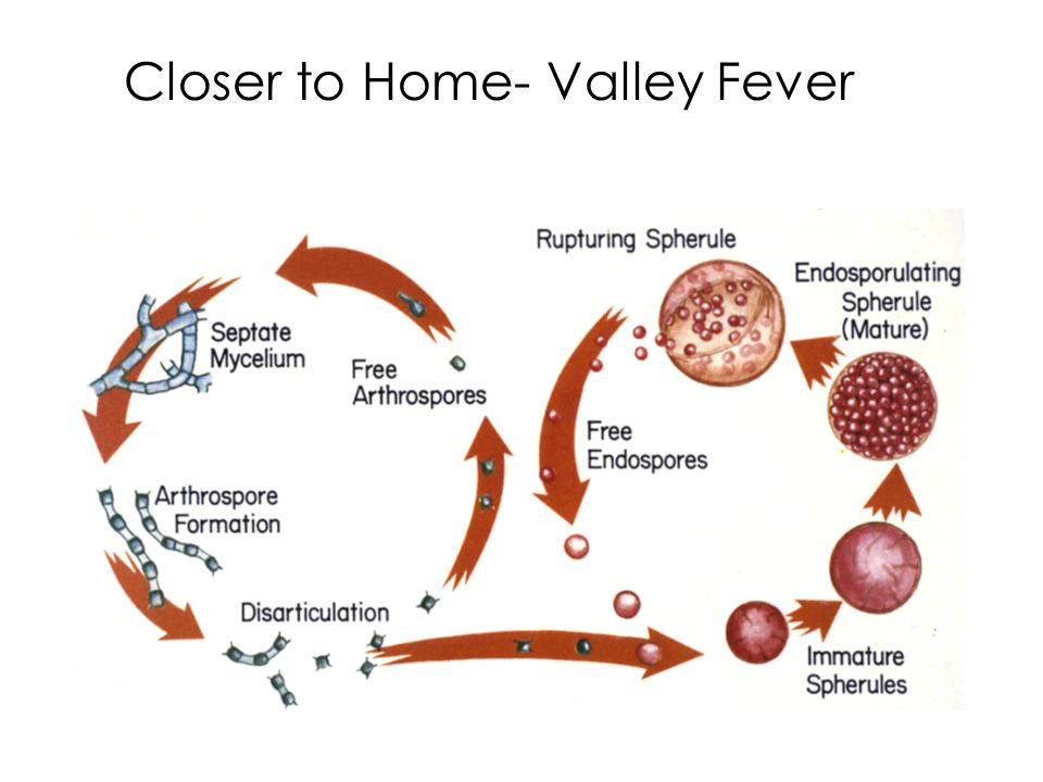 Closer to Home- Valley Fever