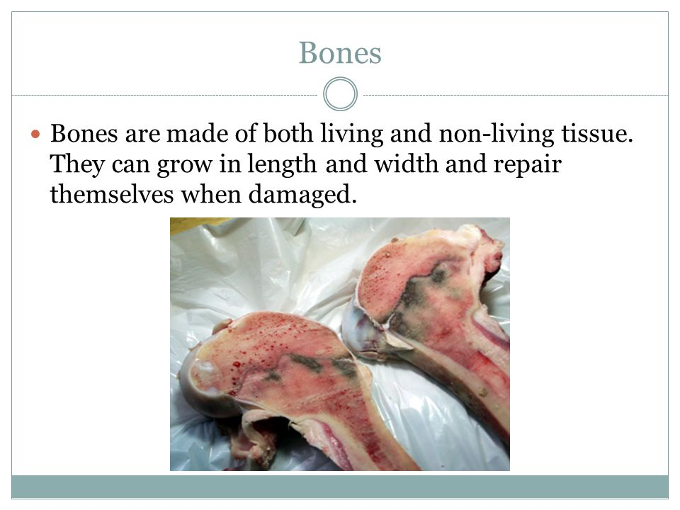 Bones Bones are made of both living and non-living tissue.