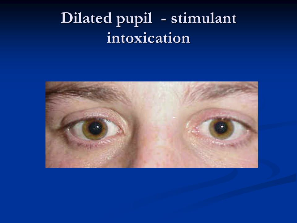 Dilated pupil - stimulant intoxication