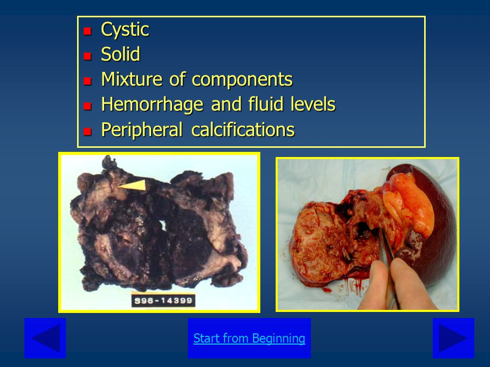 Cystic Solid Mixture of components Hemorrhage and fluid levels Peripheral calcifications