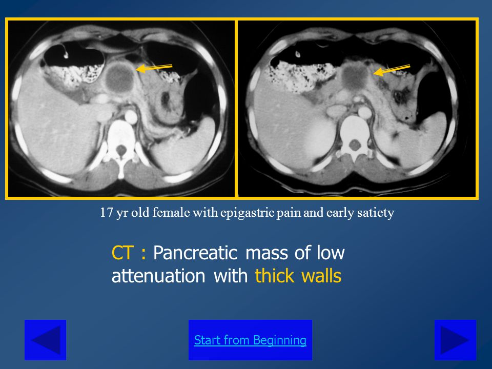 CT : Pancreatic mass of low attenuation with thick walls