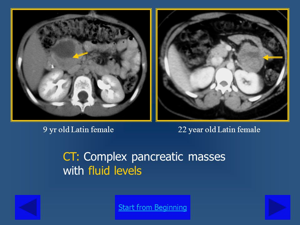 CT: Complex pancreatic masses with fluid levels