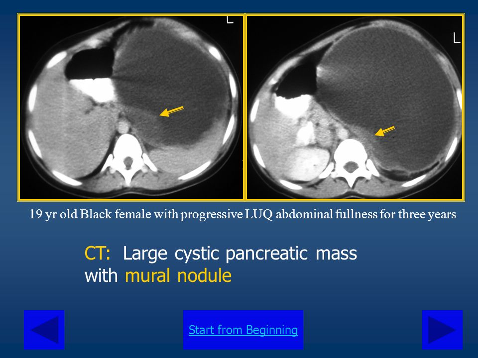 CT: Large cystic pancreatic mass with mural nodule