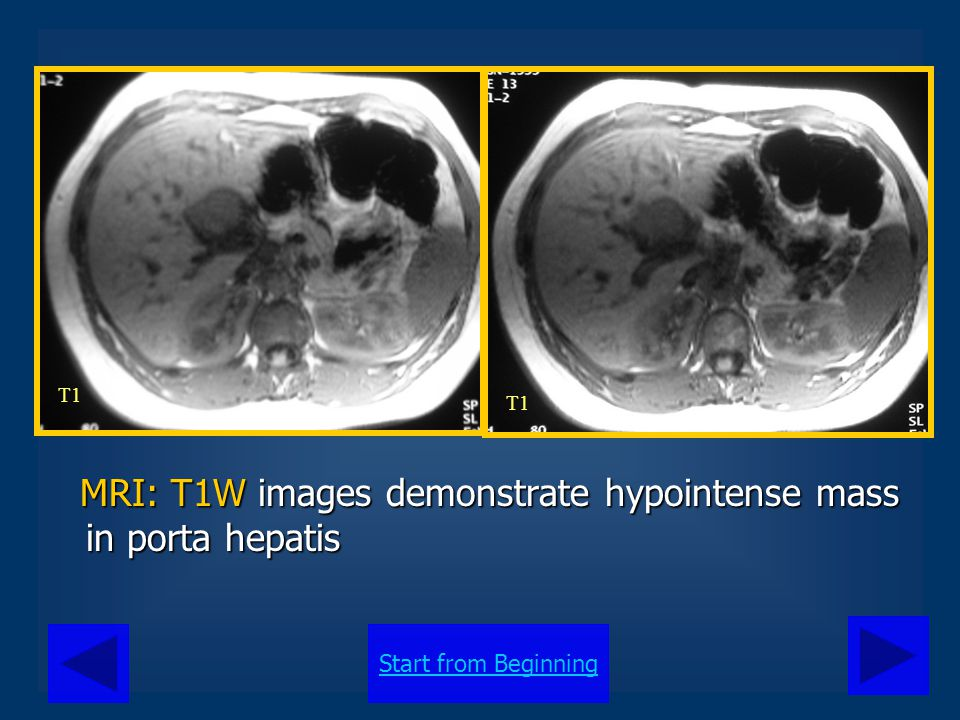 MRI: T1W images demonstrate hypointense mass in porta hepatis