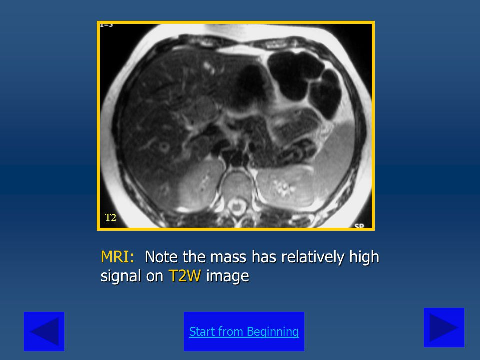 MRI: Note the mass has relatively high signal on T2W image