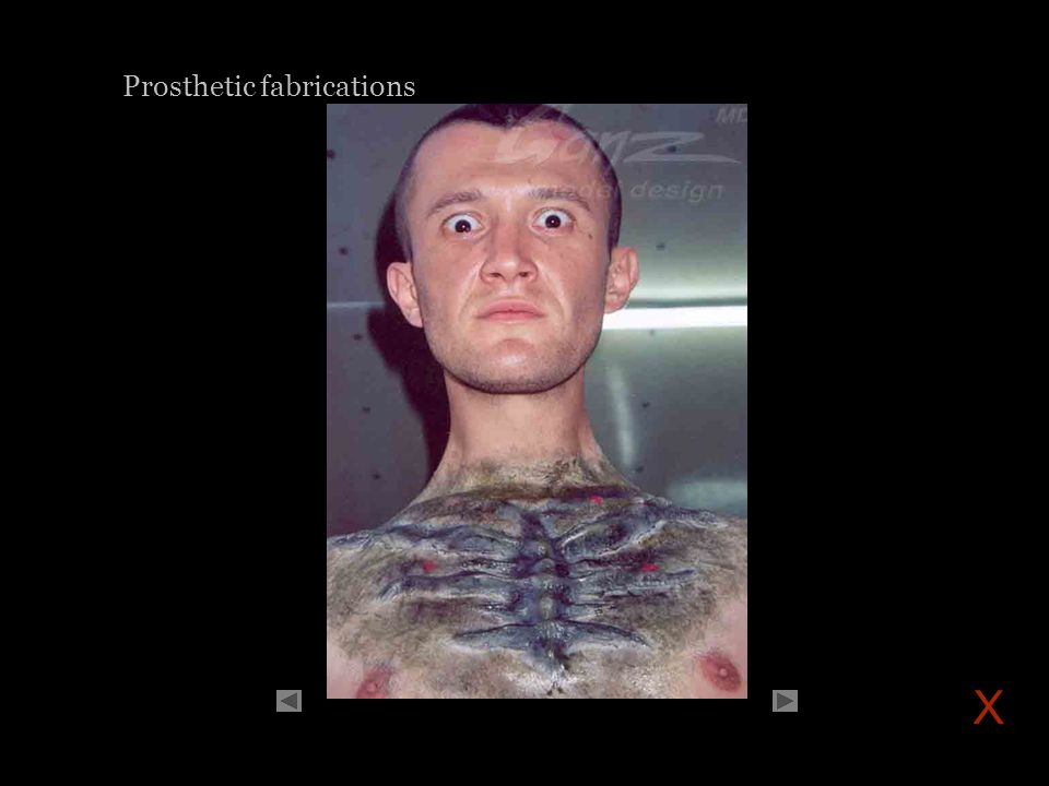 Prosthetic fabrications