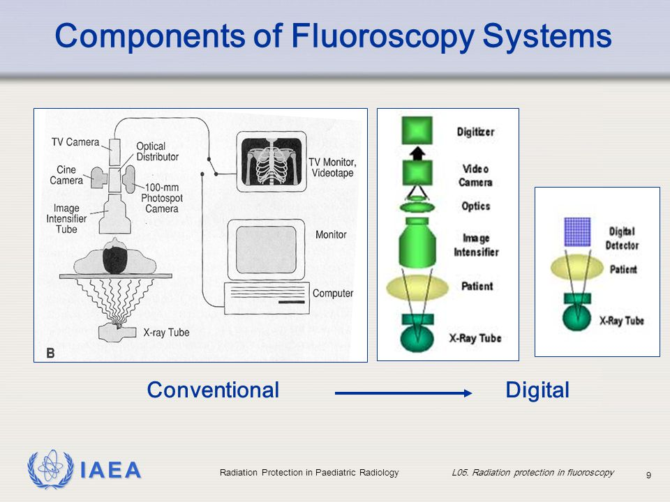 Components of Fluoroscopy Systems