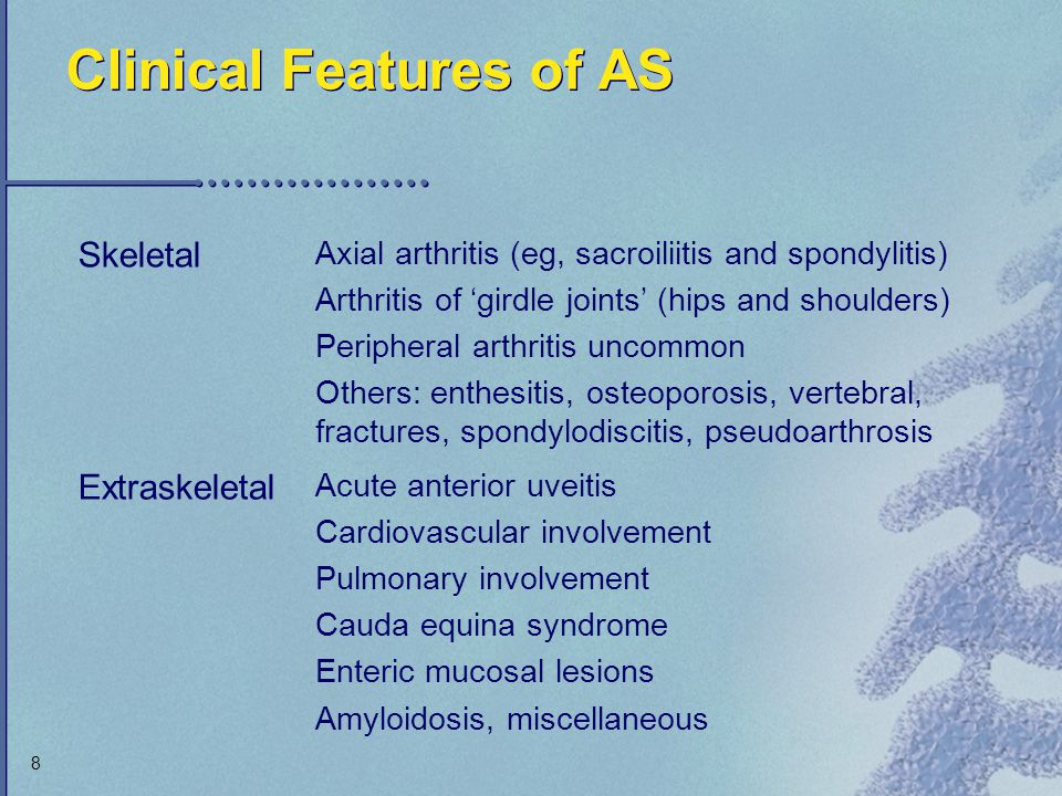 Clinical Features of AS