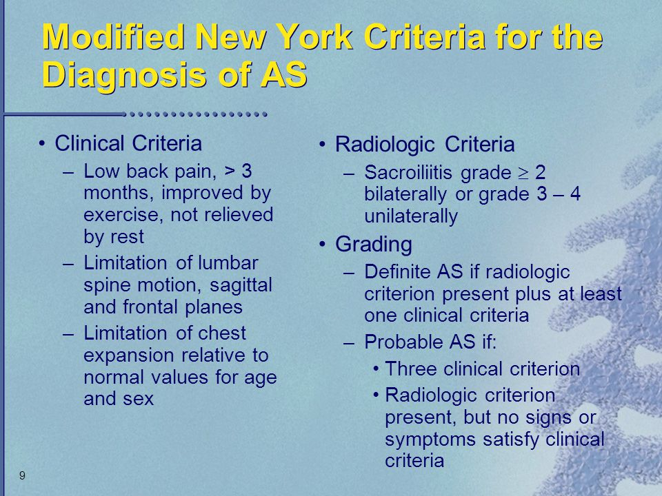 Modified New York Criteria for the Diagnosis of AS