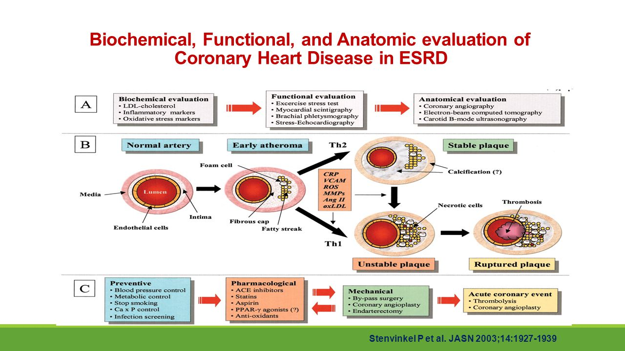 Biochemical, Functional, and Anatomic evaluation of Coronary Heart Disease in ESRD
