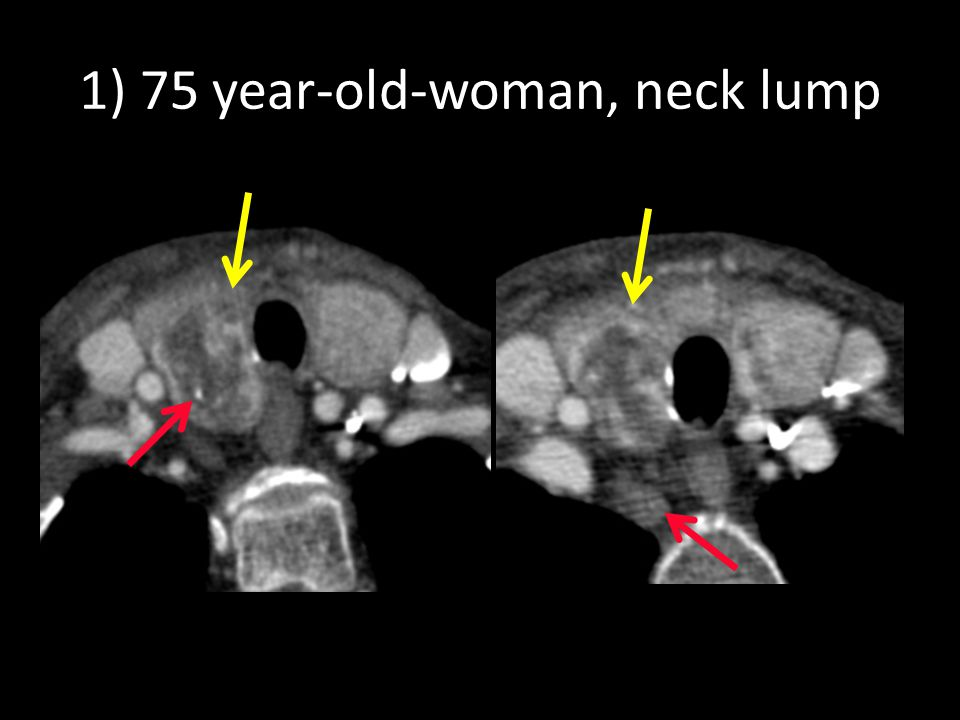 1) 75 year-old-woman, neck lump