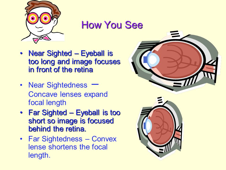 How You See Near Sighted – Eyeball is too long and image focuses in front of the retina. Near Sightedness – Concave lenses expand focal length.