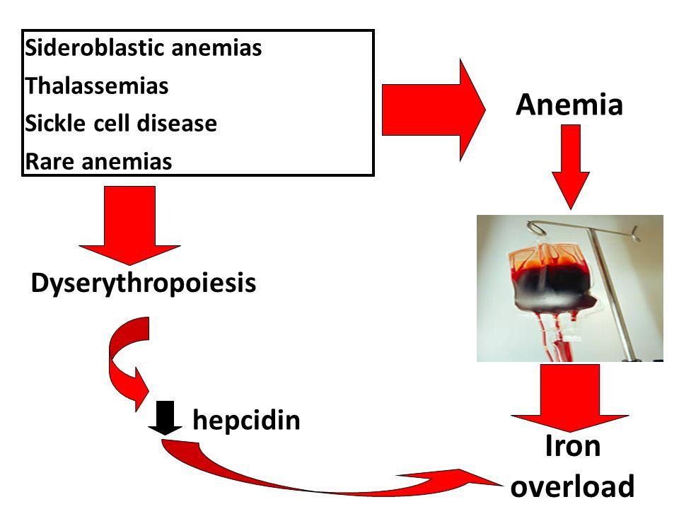 Anemia Iron overload Dyserythropoiesis hepcidin Sideroblastic anemias