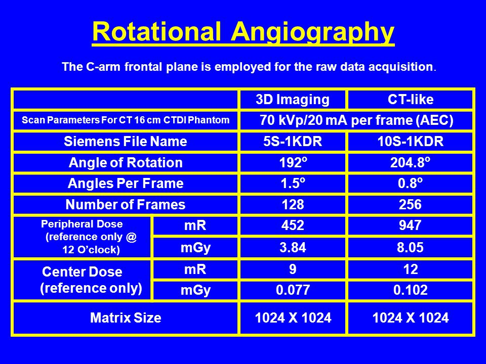 Rotational Angiography