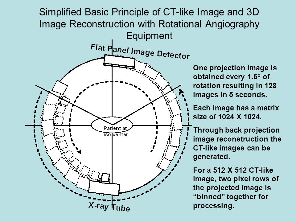 Simplified Basic Principle of CT-like Image and 3D Image Reconstruction with Rotational Angiography Equipment