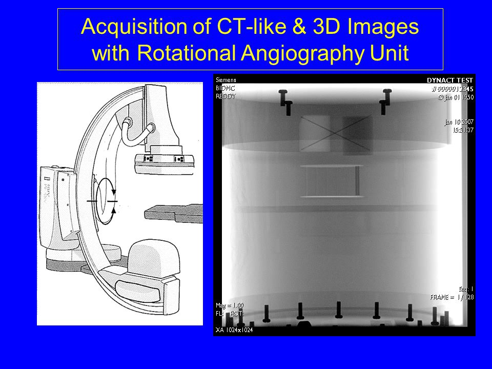 Acquisition of CT-like & 3D Images with Rotational Angiography Unit
