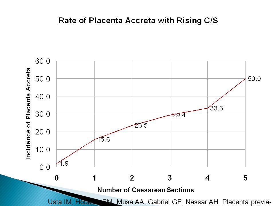 Number of Caesarean Sections