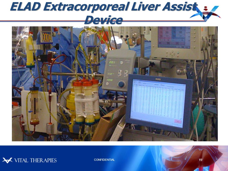ELAD Extracorporeal Liver Assist Device