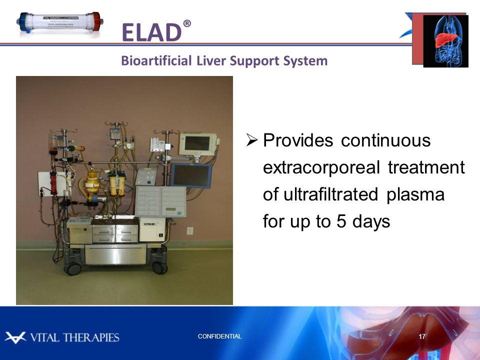ELAD® Bioartificial Liver Support System