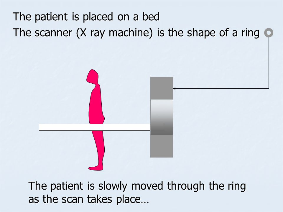 The patient is placed on a bed