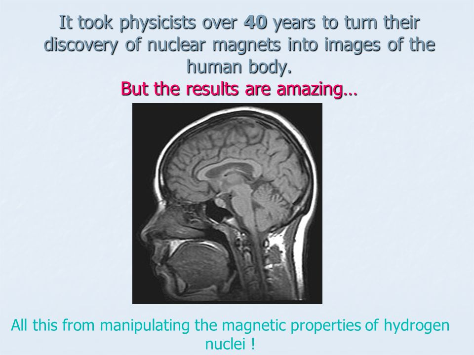 It took physicists over 40 years to turn their discovery of nuclear magnets into images of the human body. But the results are amazing…