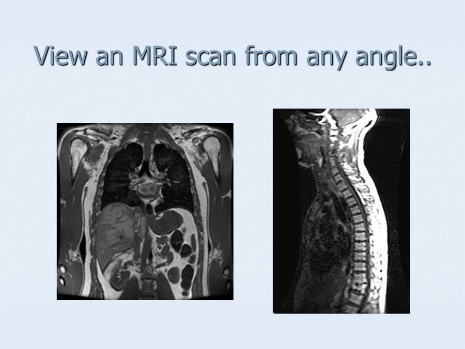 View an MRI scan from any angle..