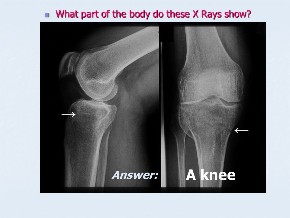 What part of the body do these X Rays show