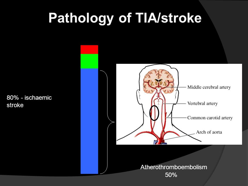 Pathology of TIA/stroke