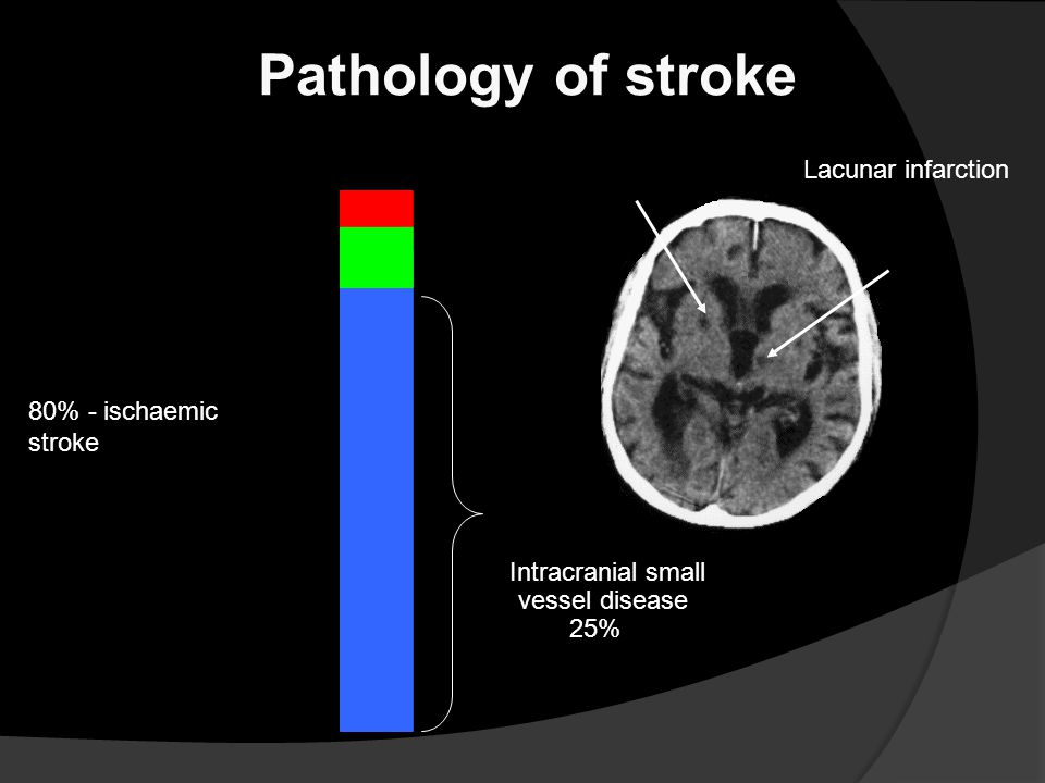 Pathology of stroke 5% - subarachnoid haemorrhage Lacunar infarction