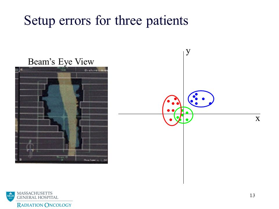 Setup errors for three patients