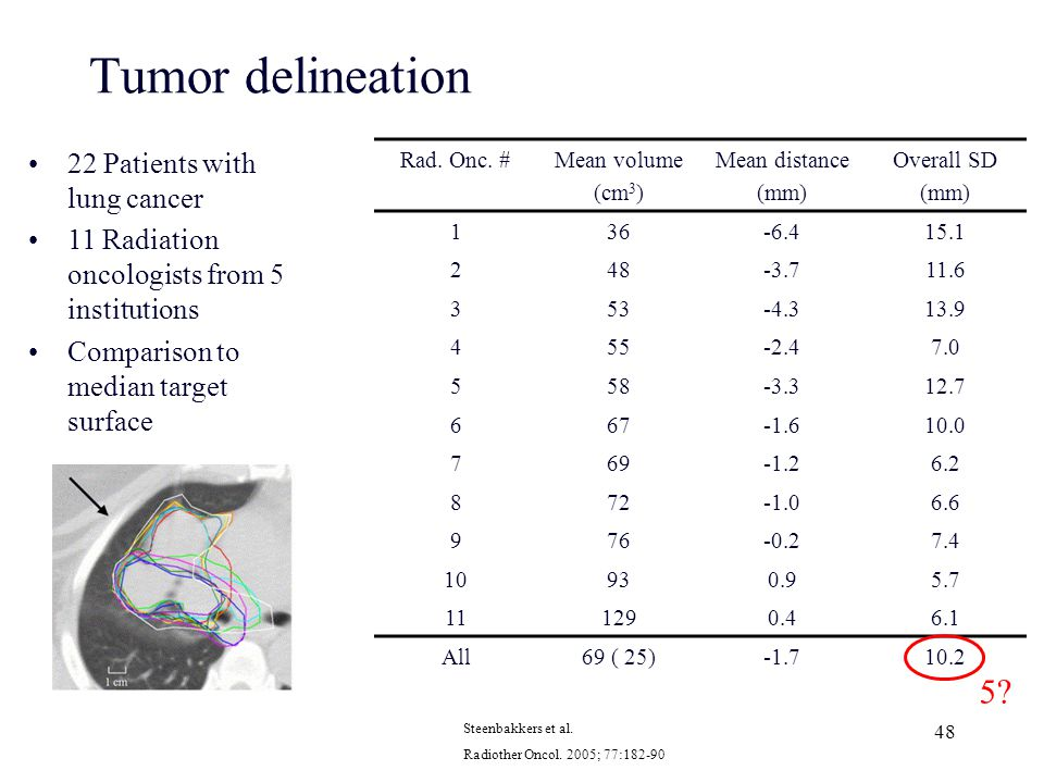 Tumor delineation 5 22 Patients with lung cancer